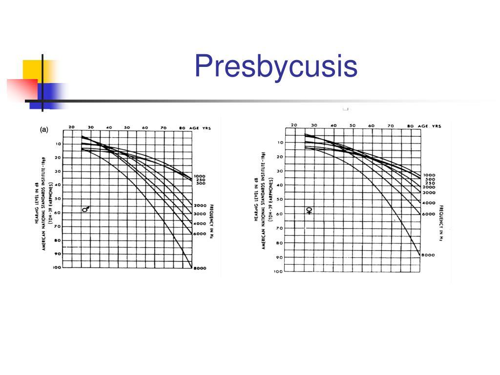 Presbycusis