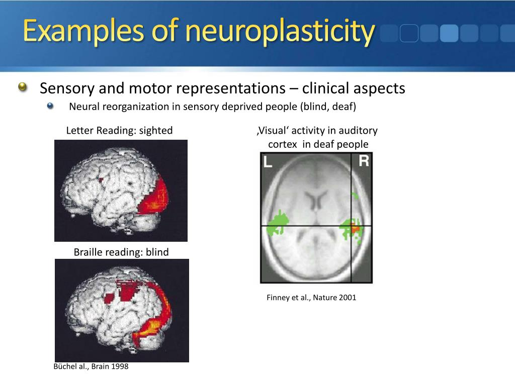 plasticity in humans 18072015 not so sure about that age-plasticity decrease there are indeed trade-offs with aging but i don' t  how does neuroplasticity change with age.