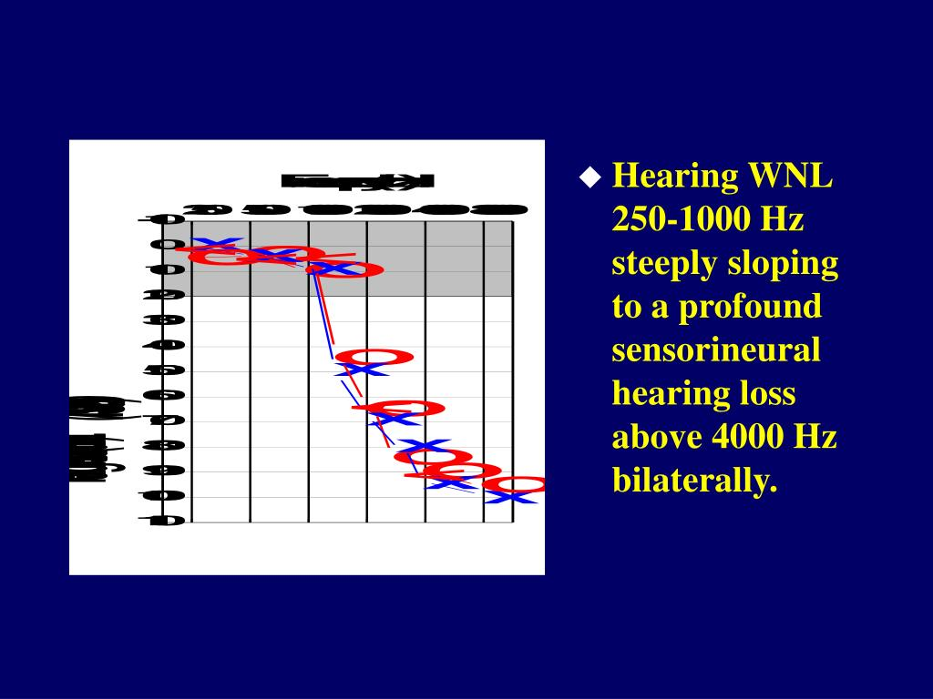 Hearing WNL 250-1000 Hz steeply sloping to a profound sensorineural hearing loss above 4000 Hz bilaterally.
