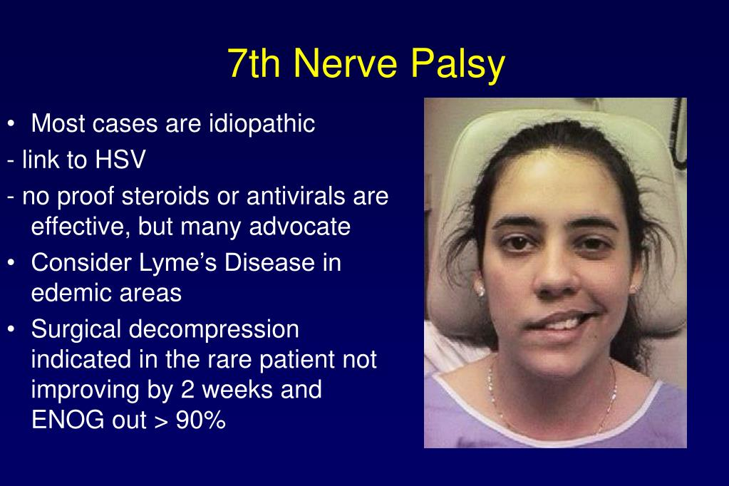 7th Nerve Palsy