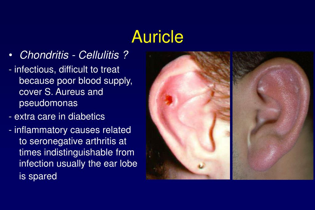 Auricle