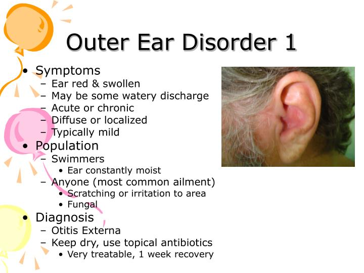 Outer ear disorder 1