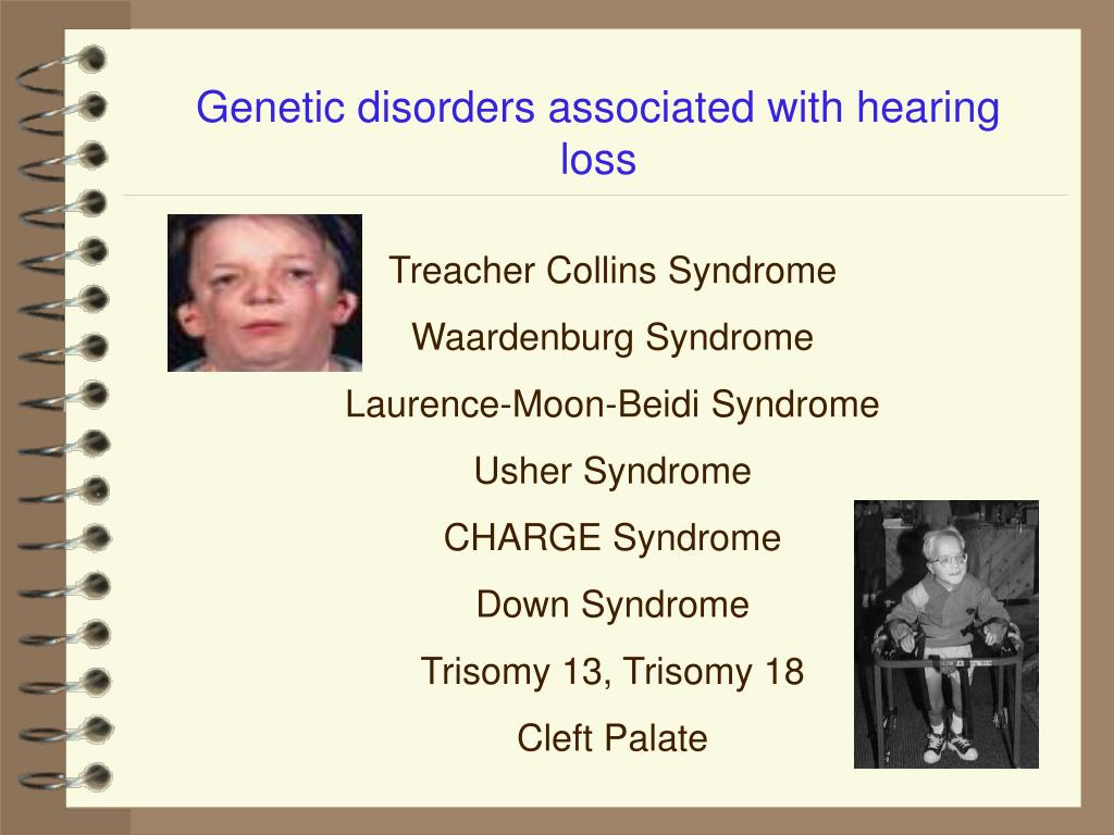 Genetic disorders associated with hearing loss