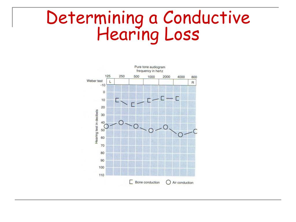 Determining a Conductive Hearing Loss