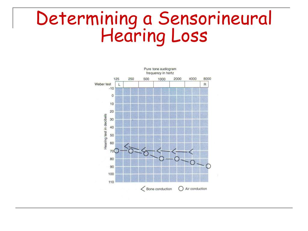 Determining a Sensorineural Hearing Loss