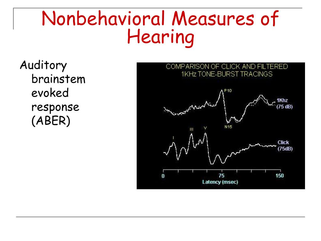 Nonbehavioral Measures of Hearing