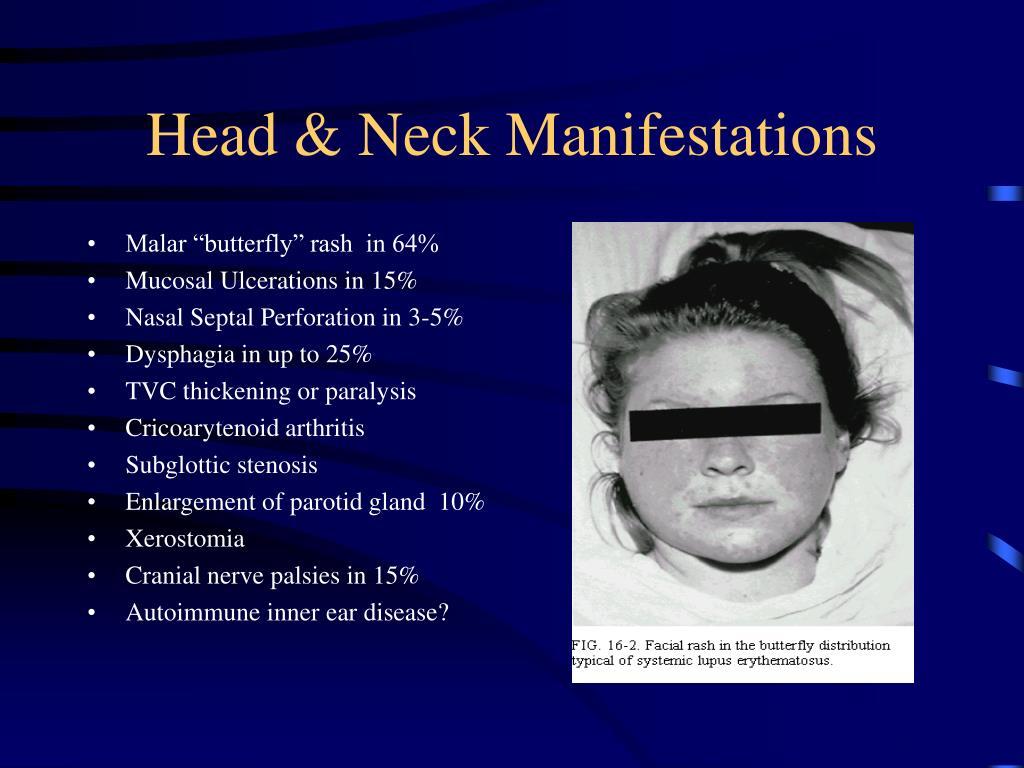 Head & Neck Manifestations