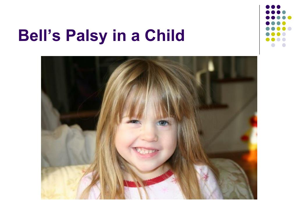 Bell's Palsy in a Child
