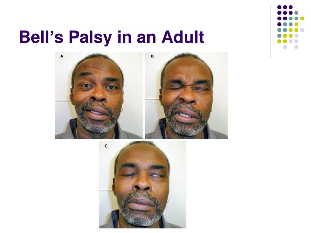 Bell's Palsy in an Adult
