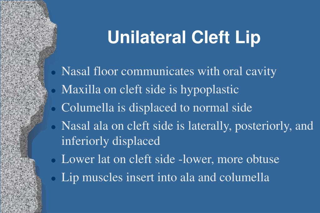 Unilateral Cleft Lip