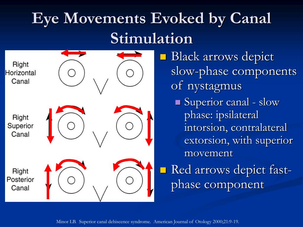 Eye Movements Evoked by Canal Stimulation