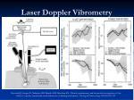 laser doppler vibrometry37