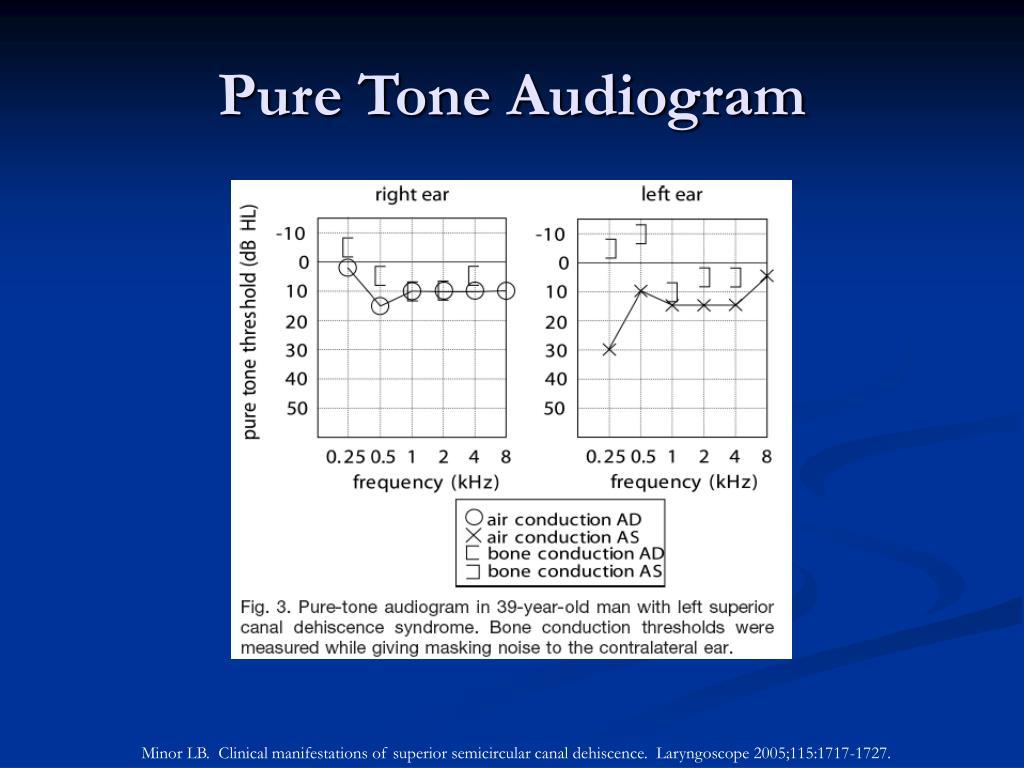 Pure Tone Audiogram