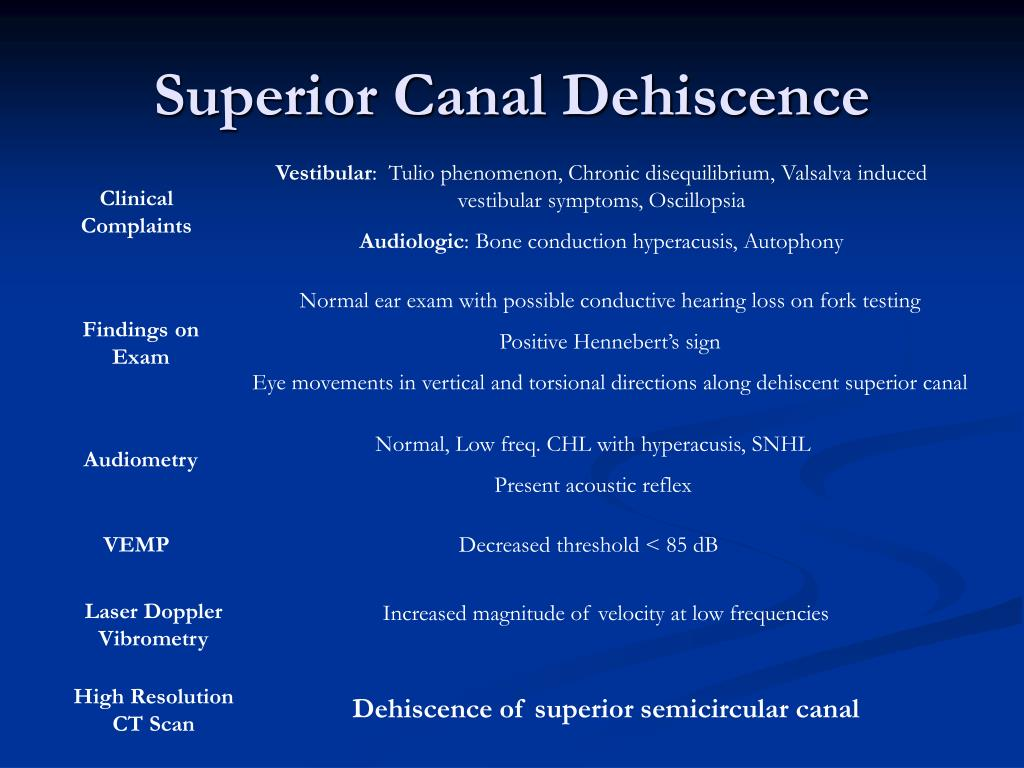 Superior Canal Dehiscence