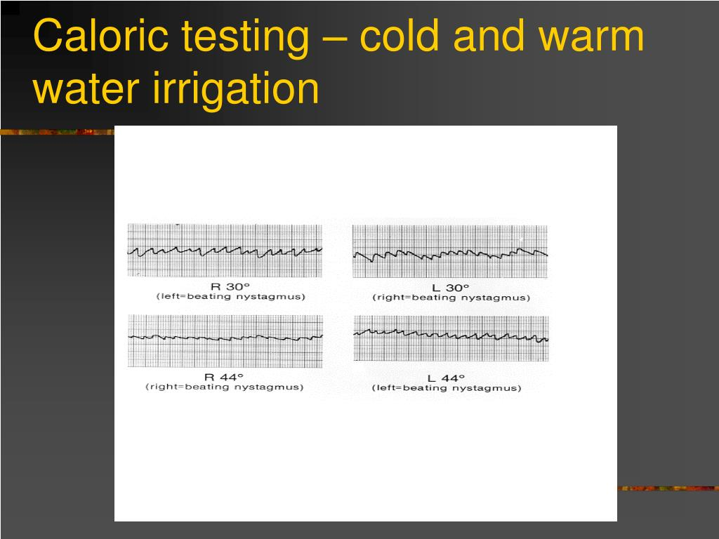 Caloric testing – cold and warm water irrigation