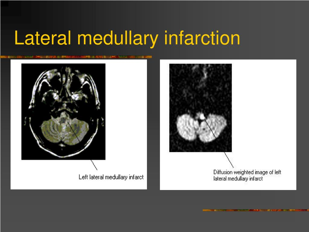 Lateral medullary infarction
