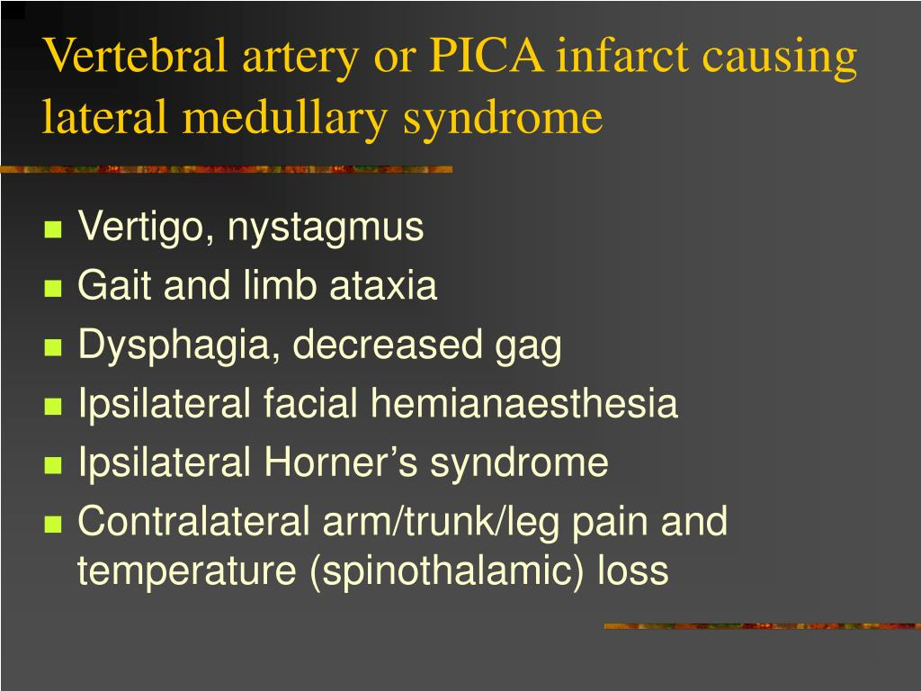 Vertebral artery or PICA infarct causing lateral medullary syndrome