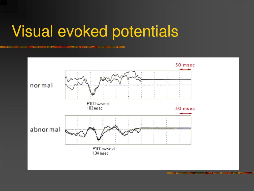 Visual evoked potentials