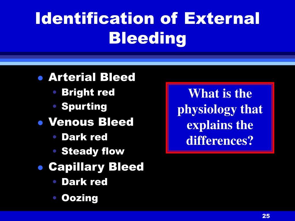 Identification of External Bleeding