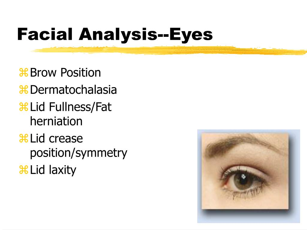 Facial Analysis--Eyes