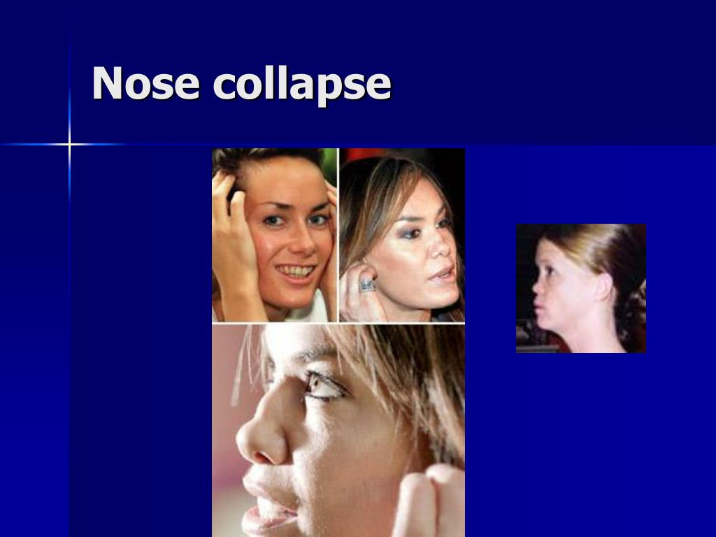 Nose collapse