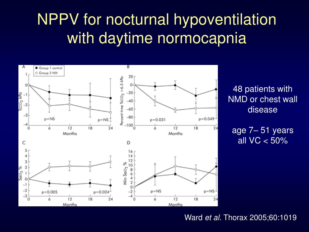 NPPV for nocturnal hypoventilation