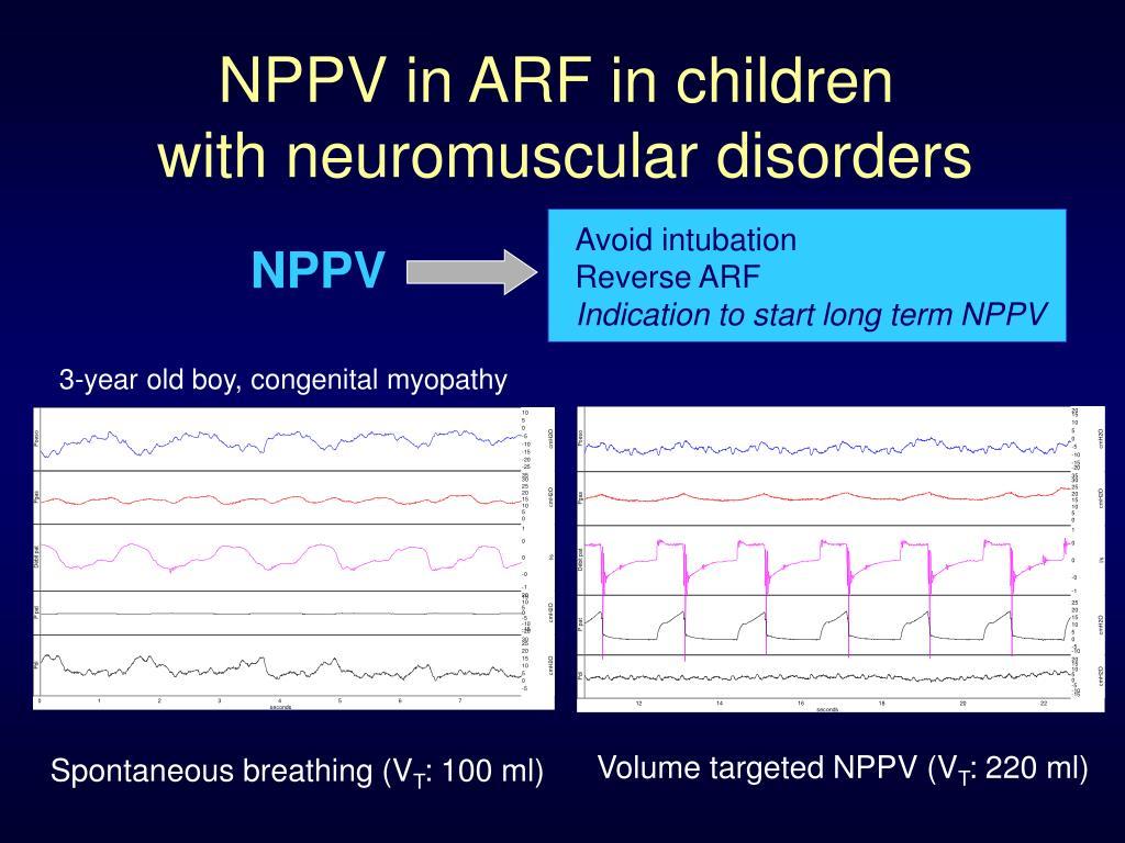 NPPV in ARF in children