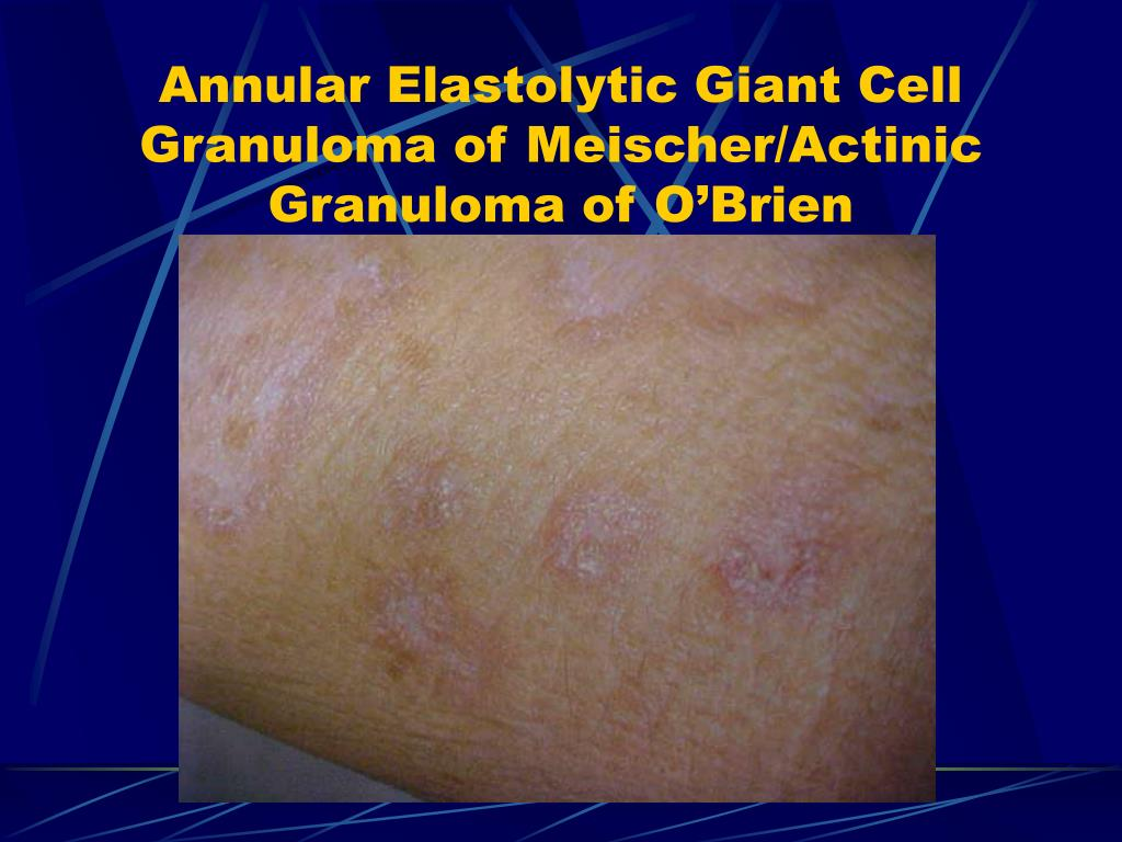 Annular Elastolytic Giant Cell Granuloma of Meischer/Actinic Granuloma of O'Brien