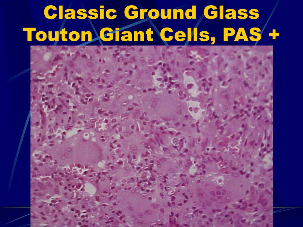 Classic Ground Glass Touton Giant Cells, PAS +
