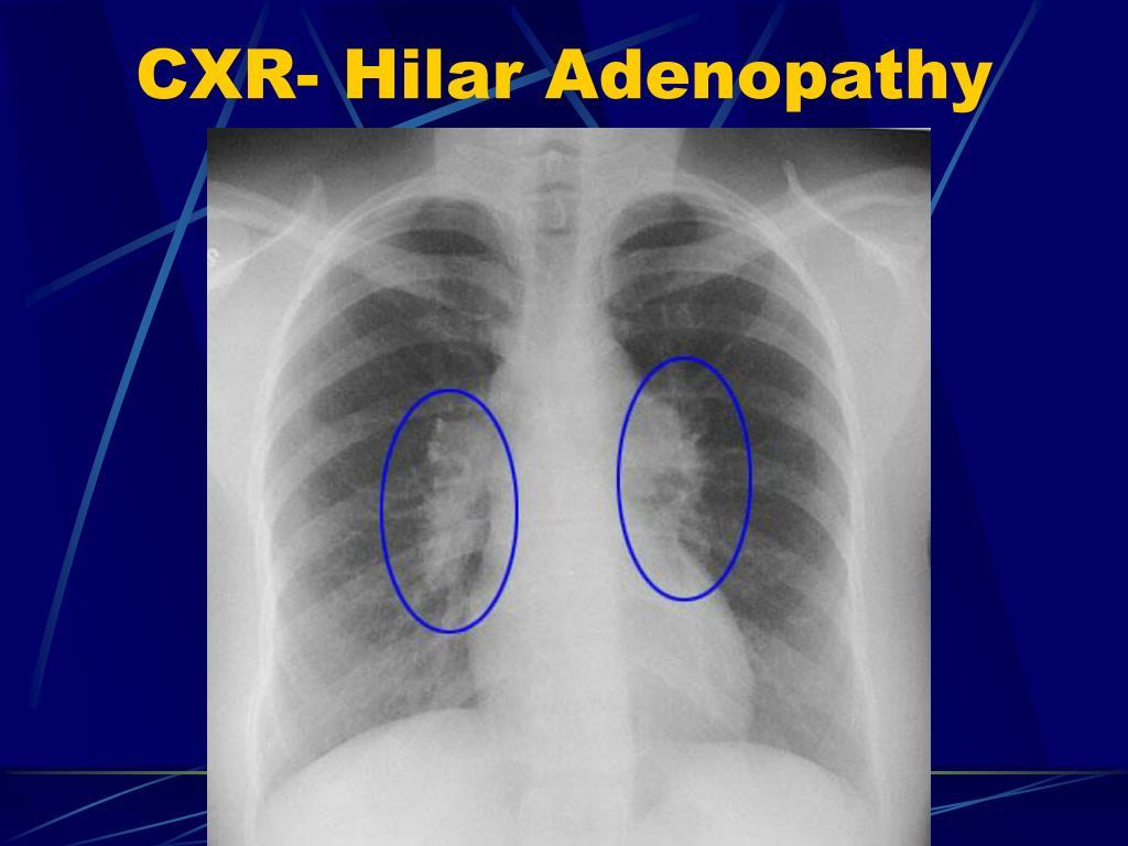 CXR- Hilar Adenopathy