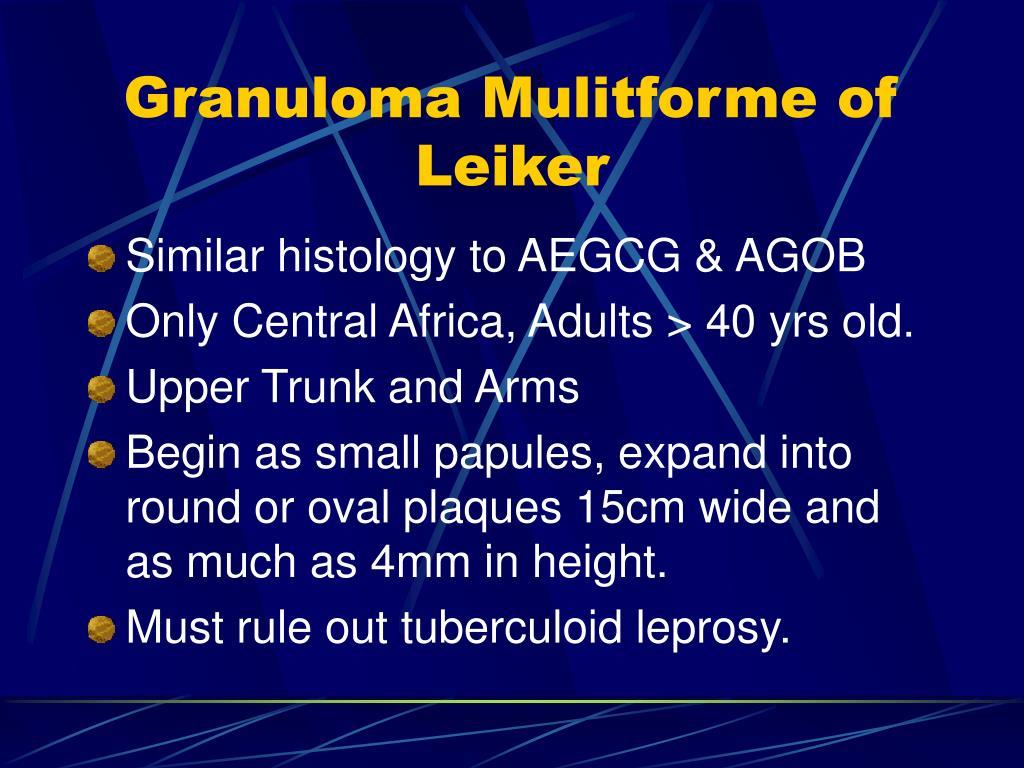 Granuloma Mulitforme of Leiker