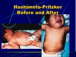 hashimoto pritzker before and after