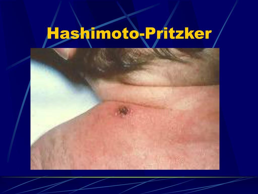 Hashimoto-Pritzker