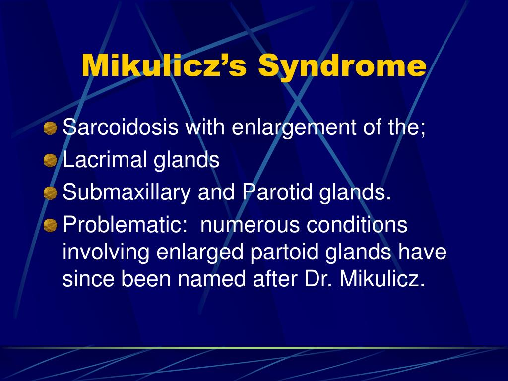 Mikulicz's Syndrome