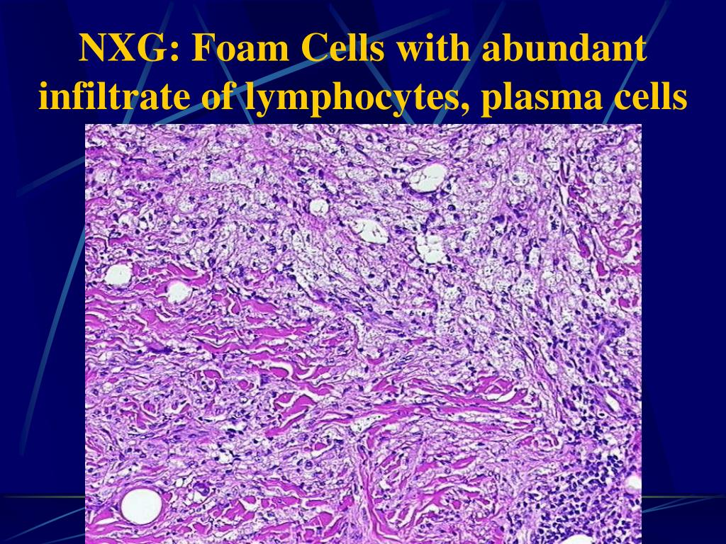 NXG: Foam Cells with abundant infiltrate of lymphocytes, plasma cells