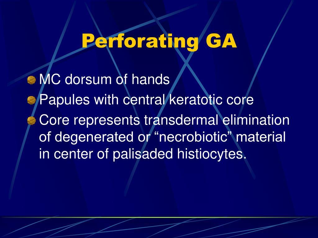 Perforating GA