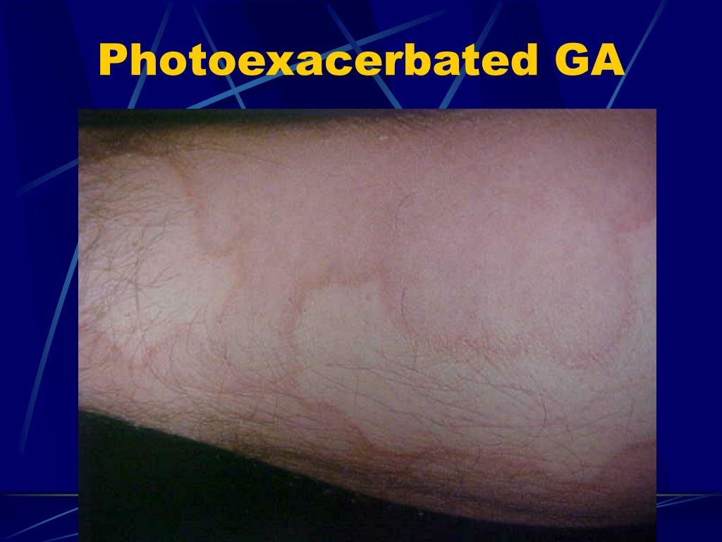 Photoexacerbated GA