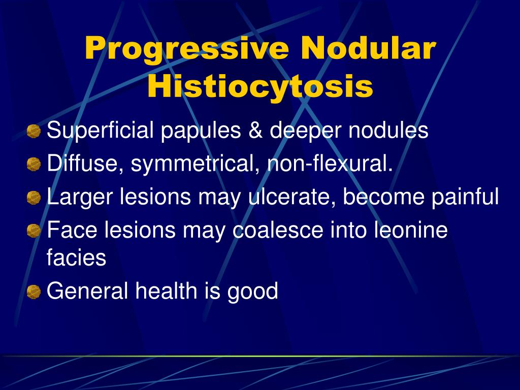 Progressive Nodular Histiocytosis
