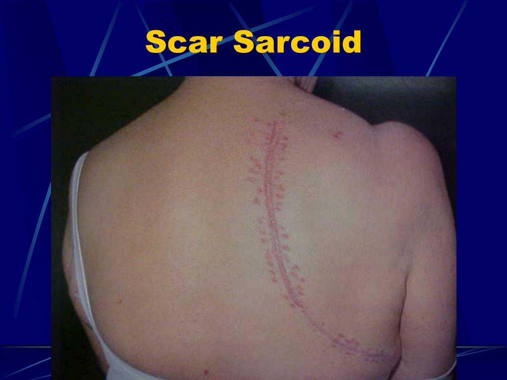 Scar Sarcoid