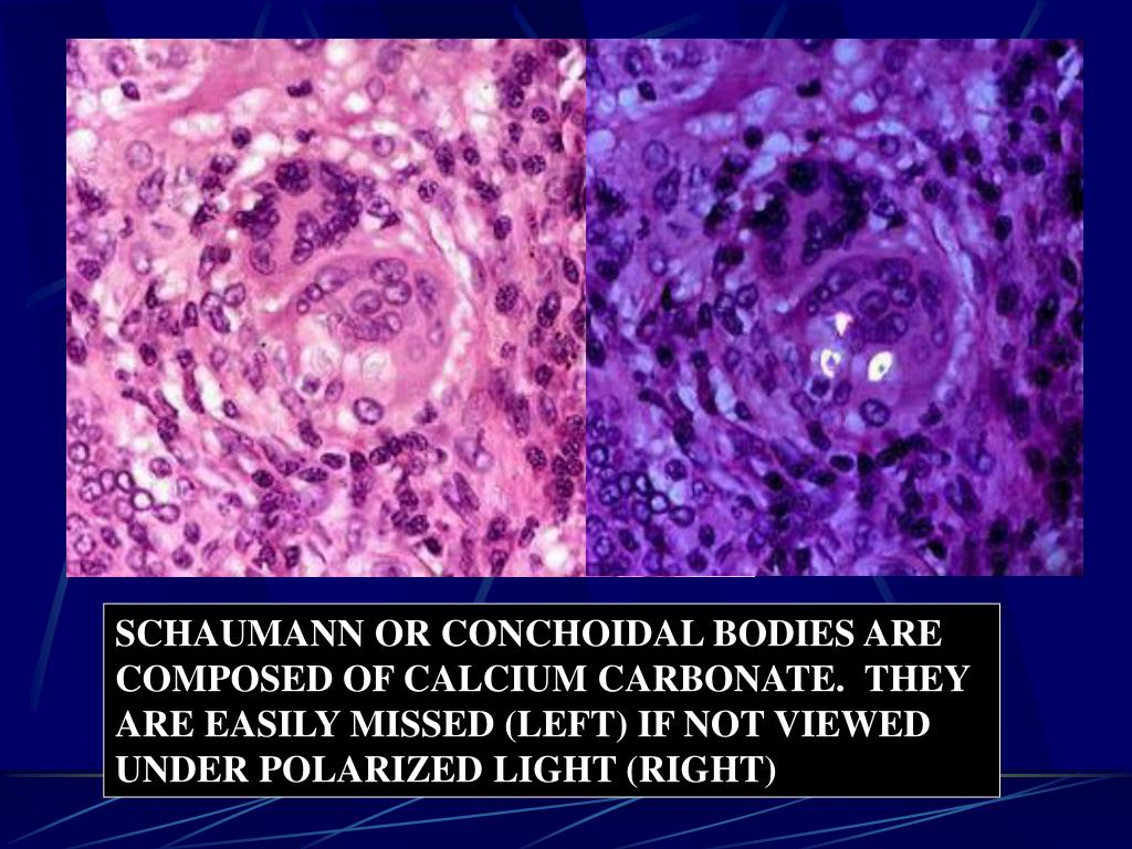 SCHAUMANN OR CONCHOIDAL BODIES ARE COMPOSED OF CALCIUM CARBONATE.  THEY ARE EASILY MISSED (LEFT) IF NOT VIEWED UNDER POLARIZED LIGHT (RIGHT)