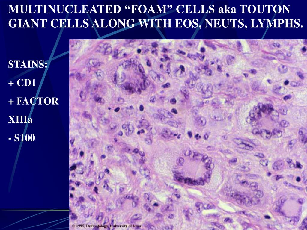"MULTINUCLEATED ""FOAM"" CELLS aka TOUTON GIANT CELLS ALONG WITH EOS, NEUTS, LYMPHS."