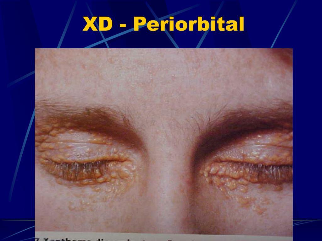 XD - Periorbital