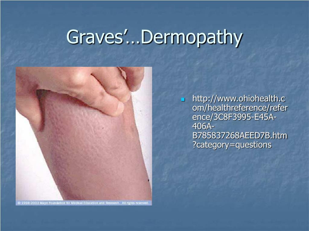 Graves'…Dermopathy