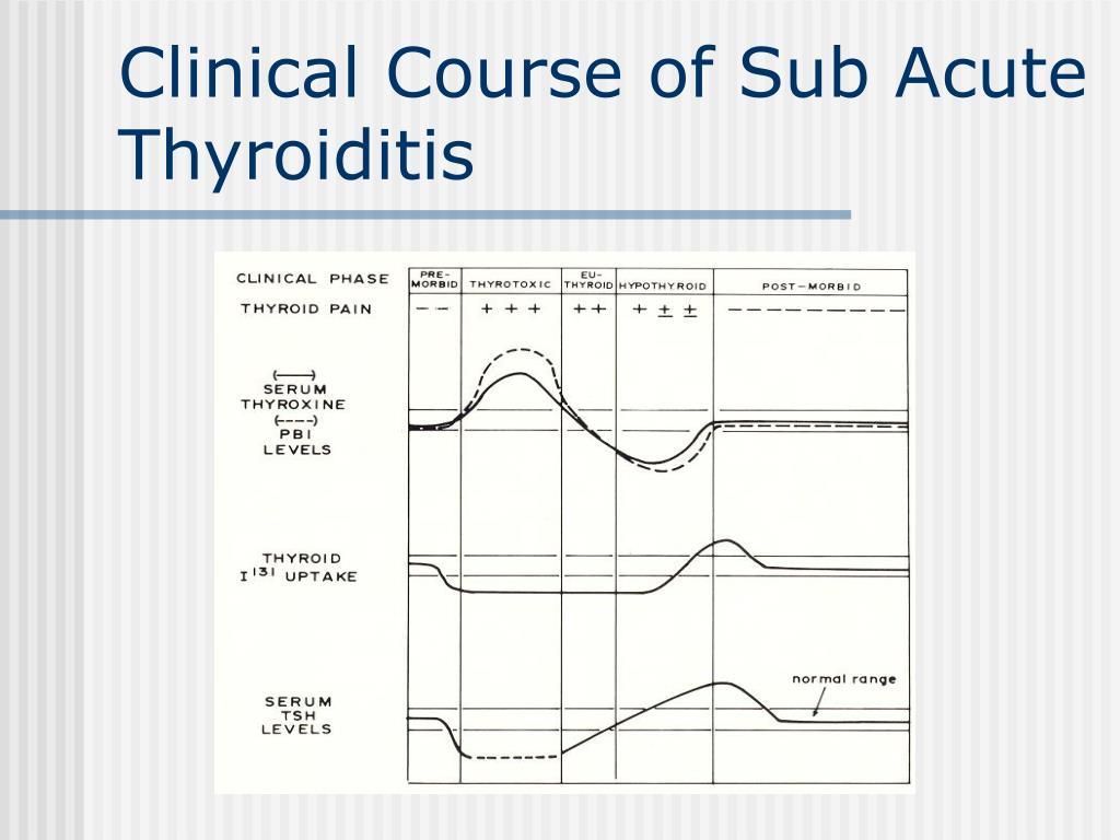 Clinical Course of Sub Acute Thyroiditis