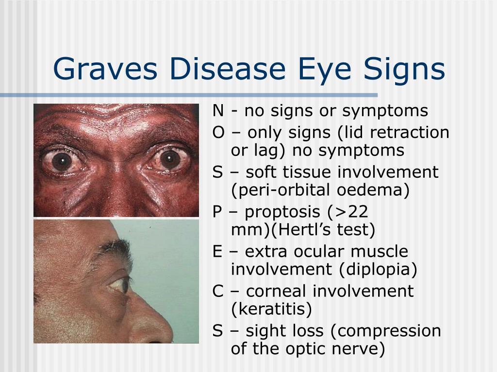 Graves Disease Eye Signs