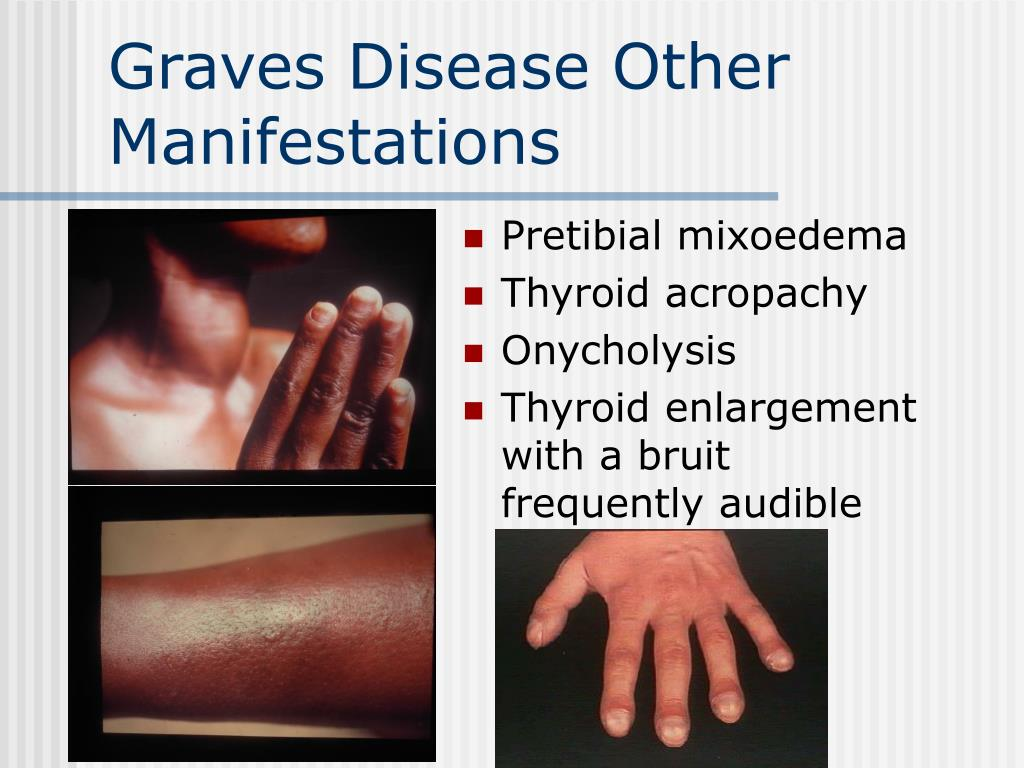 Graves Disease Other Manifestations