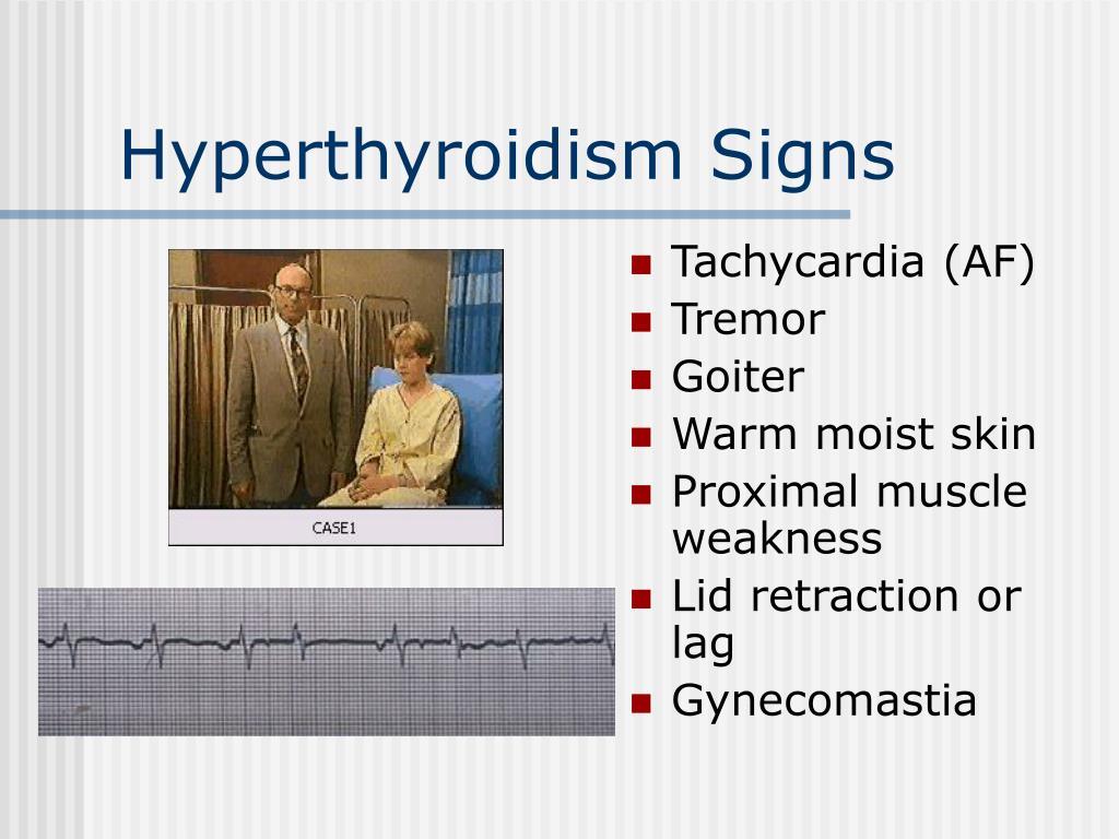 Hyperthyroidism Signs