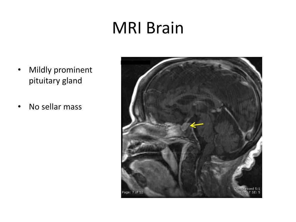 MRI Brain