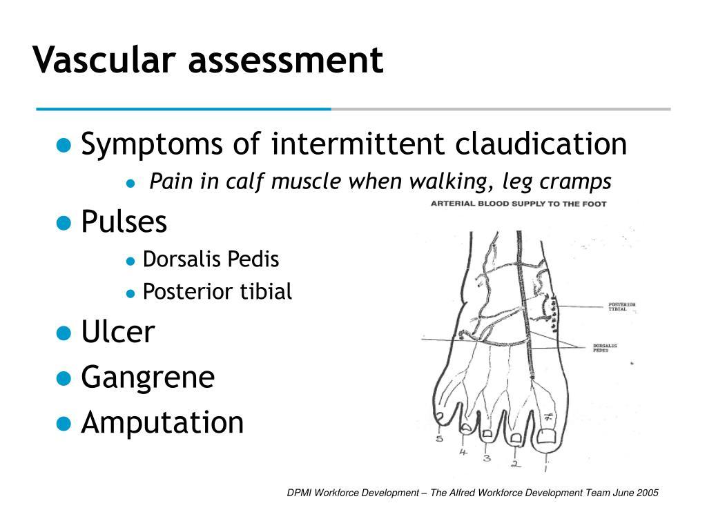 Vascular assessment
