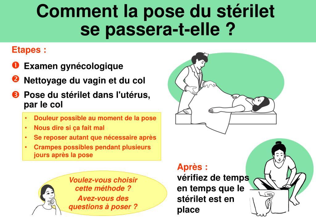 Comment la pose du stérilet